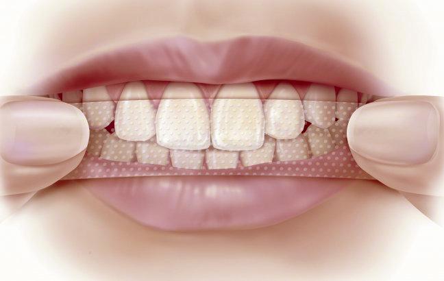 Отбелить зубы саратов цены